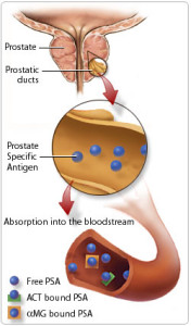 Prostate Cancer Screening
