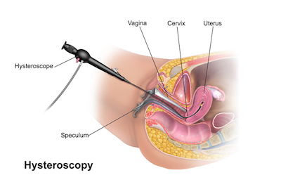 The Changing World Of Hysteroscopy