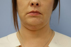 From Office Surgery to Face Lifts