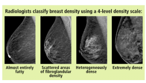 Breast Density Images