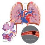 Pulmonary Arterial Hypertension