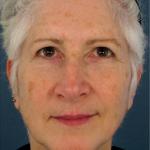 dermatology - fraxel